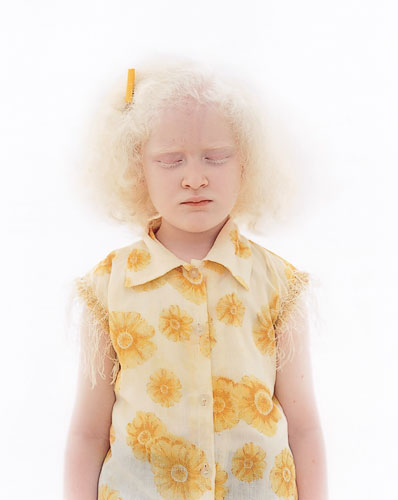 [Indian albino girl]